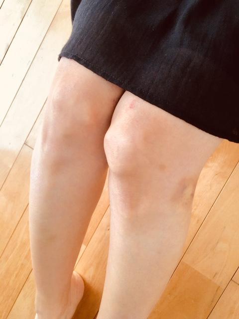 膝 の 黒ずみ 即効